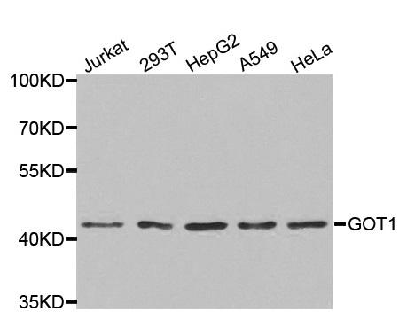 Anti GOT1 Antibody thumbnail image 1
