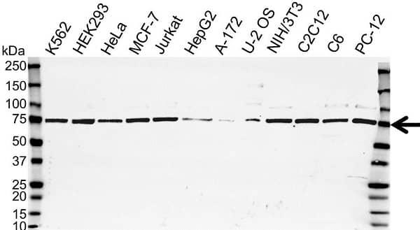 Anti GRN Antibody (PrecisionAb Polyclonal Antibody) gallery image 1