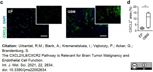 Anti Human GRO Beta Antibody thumbnail image 1