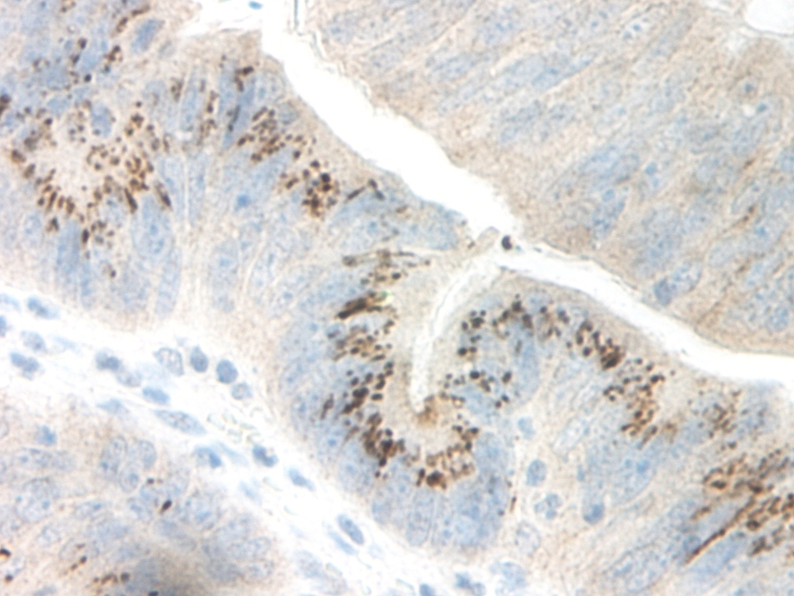 Anti Human GRO Gamma Antibody thumbnail image 2