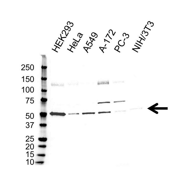 Anti GSK3 Alpha Antibody (PrecisionAb Polyclonal Antibody) thumbnail image 1