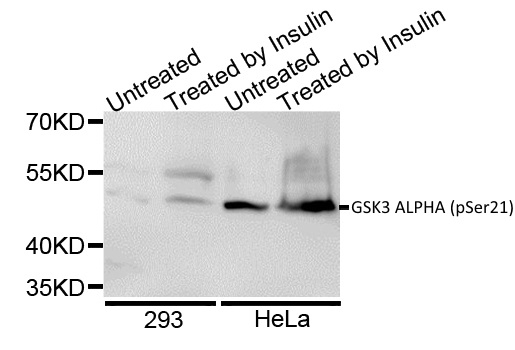 Anti GSK3 Alpha (pSer21) Antibody gallery image 1
