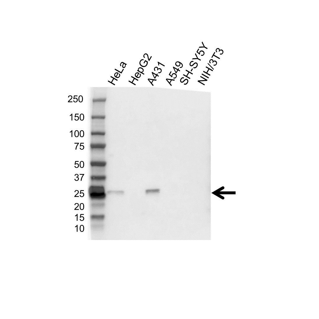 Anti GSTM1 Antibody (PrecisionAb Polyclonal Antibody) gallery image 1