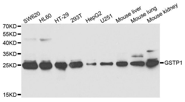 Anti GSTP1 Antibody thumbnail image 1