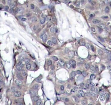 Anti Heat Shock Protein 27 (pSer82) Antibody thumbnail image 2