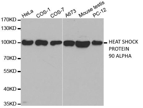 Anti Heat Shock Protein 90 Alpha Antibody thumbnail image 1