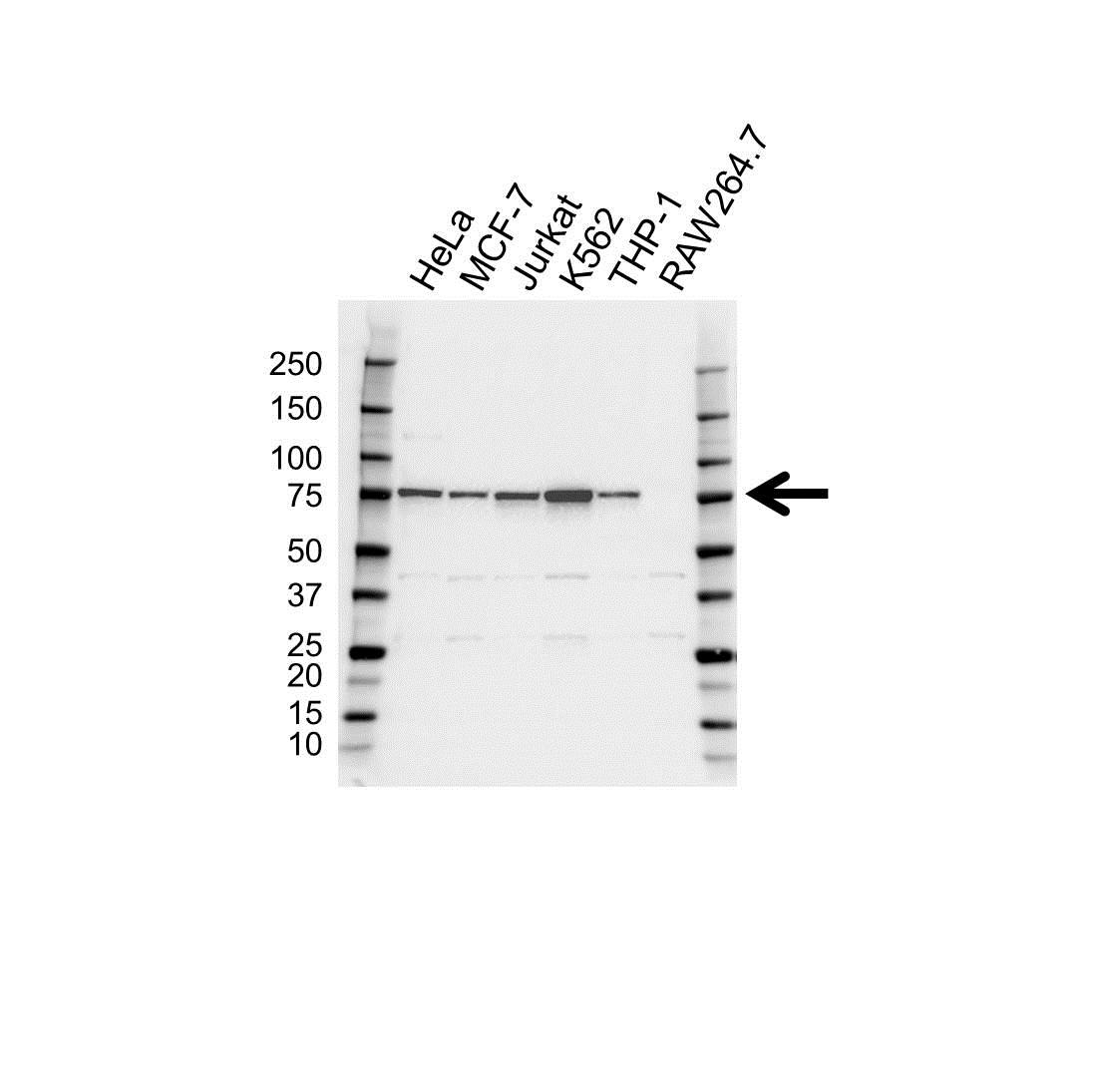 Anti HEC1 Antibody (PrecisionAb Polyclonal Antibody) gallery image 1