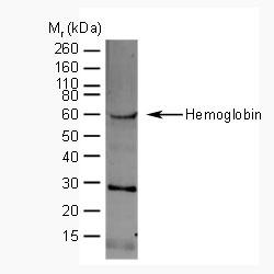 Anti Human Hemoglobin Antibody gallery image 1