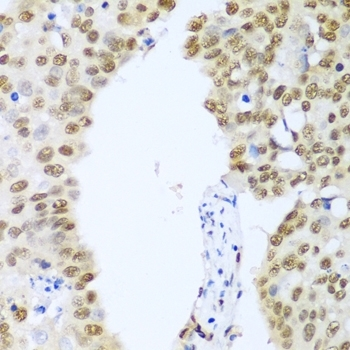 Anti Histone Deacetylase 1 Antibody gallery image 2