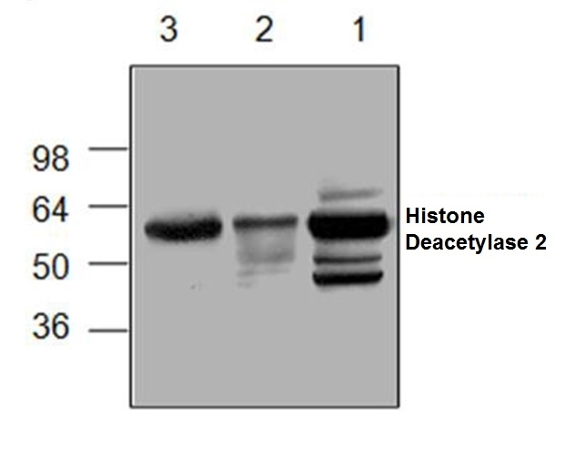 Anti Histone Deacetylase 2 Antibody gallery image 1