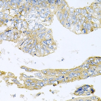 Anti Histone Deacetylase 3 Antibody thumbnail image 4