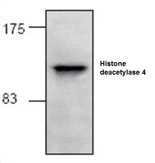 Anti Histone Deacetylase 4 Antibody gallery image 1