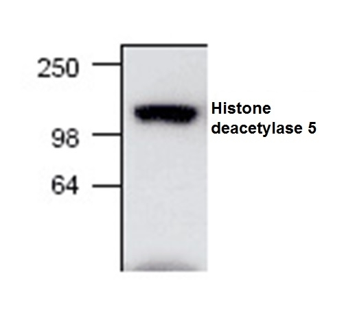 Anti Histone Deacetylase 5 Antibody gallery image 1
