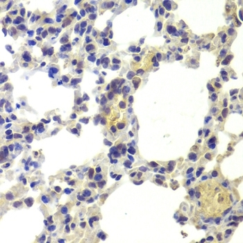 Anti Histone Deacetylase 5 Antibody thumbnail image 4