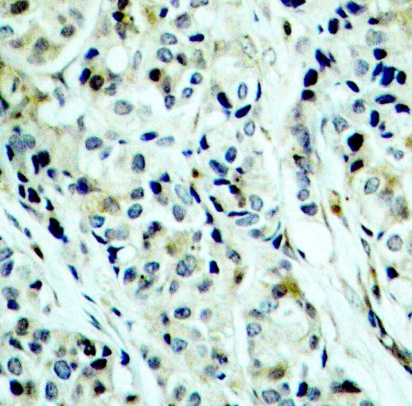 Anti Histone Deacetylase 5 (pSer498) Antibody thumbnail image 2