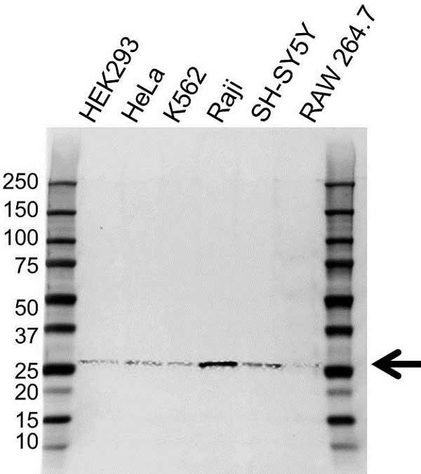 Anti HLA-DQA2 Antibody (PrecisionAb Polyclonal Antibody) gallery image 1