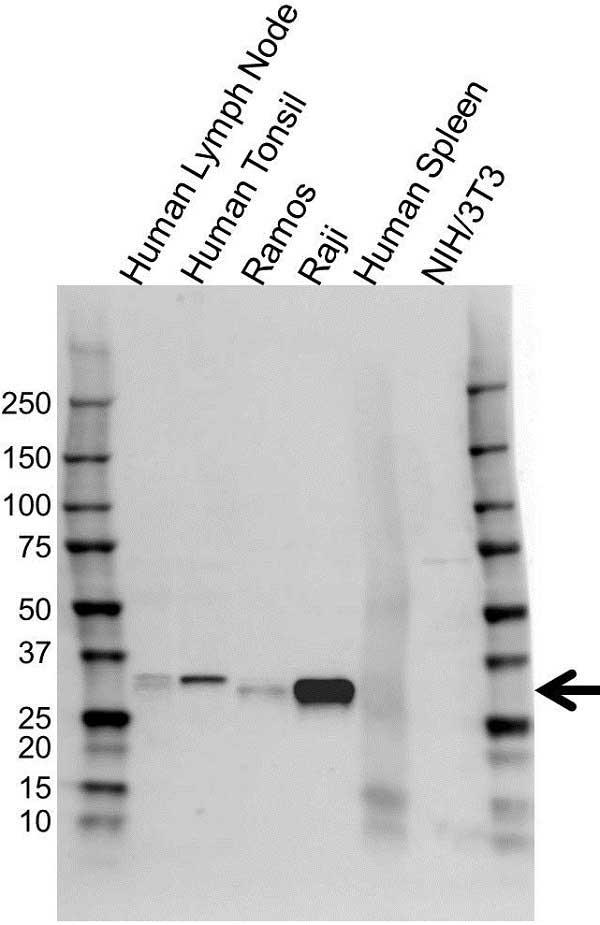 Anti HLA DRB1 Antibody (PrecisionAb Polyclonal Antibody) gallery image 1