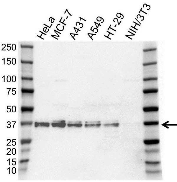Anti hnRNP A2B1 Antibody (PrecisionAb Polyclonal Antibody) thumbnail image 1