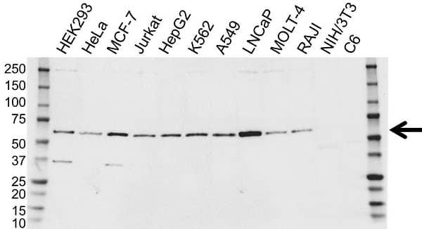 Anti HR23B Antibody (PrecisionAb Polyclonal Antibody) gallery image 1
