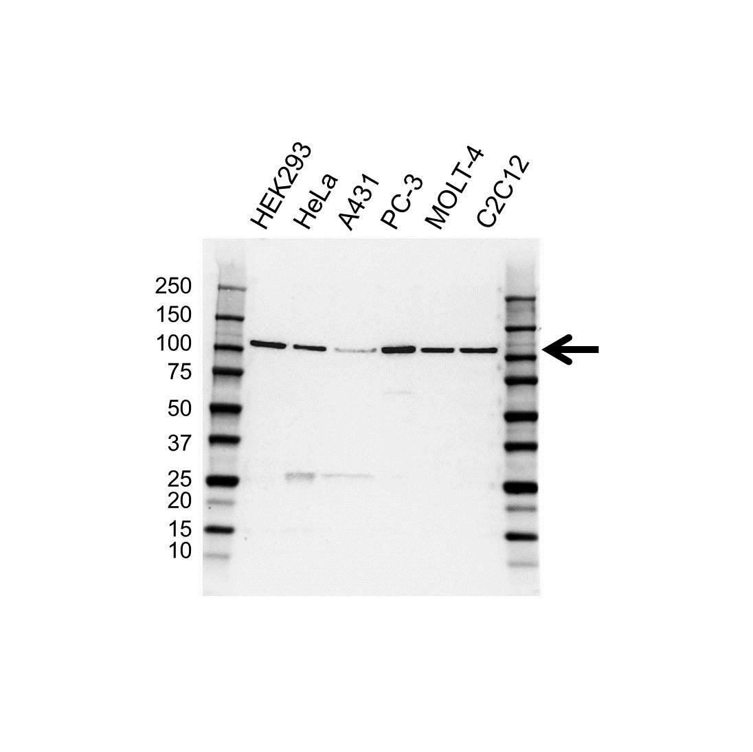 Anti Hrs / HGS Antibody (PrecisionAb™ Polyclonal Antibody) gallery image 1