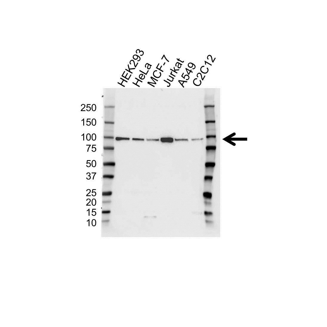 Anti IGF1R Antibody (PrecisionAb Polyclonal Antibody) gallery image 1
