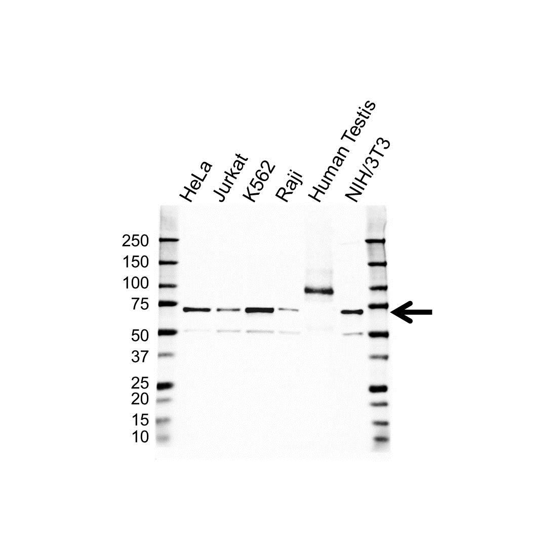 Anti IGF2BP-1 Antibody (PrecisionAb Polyclonal Antibody) gallery image 1