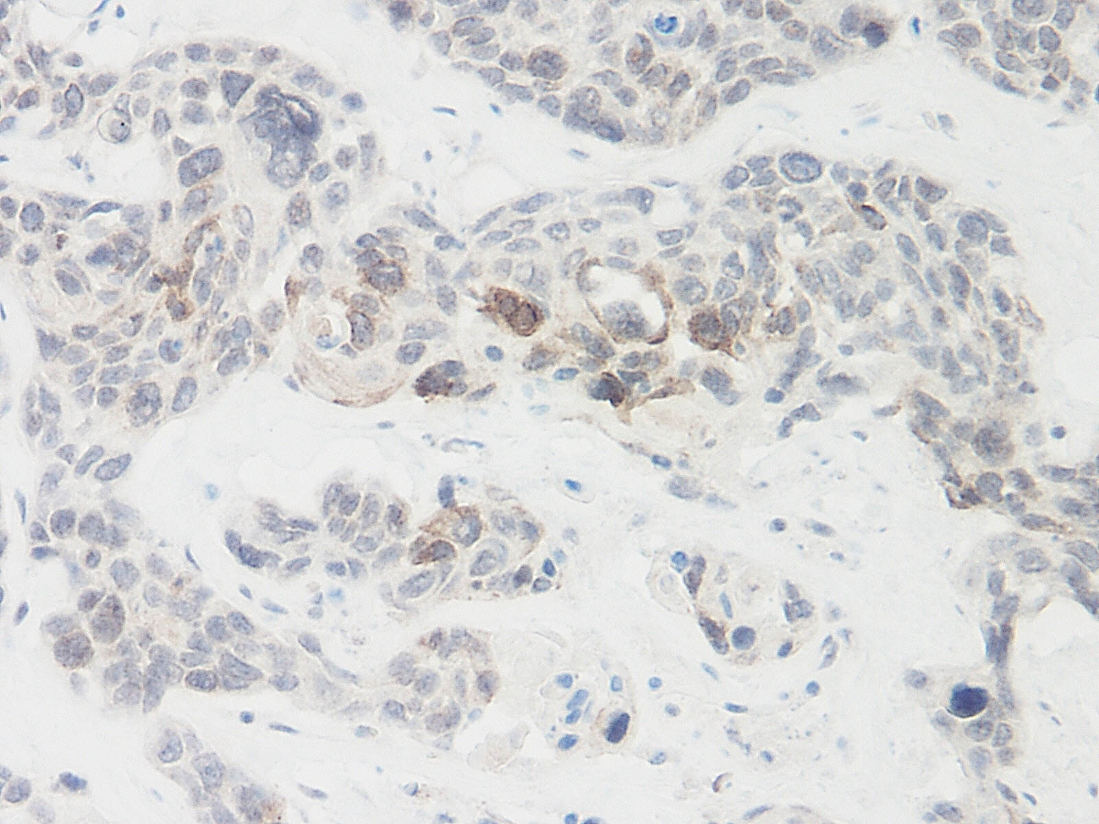 Anti Human Igfbp-9 Antibody thumbnail image 1