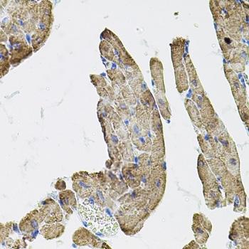 Anti IKK Gamma Antibody thumbnail image 3