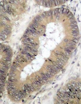 Anti IKK (pThr23) Antibody thumbnail image 1