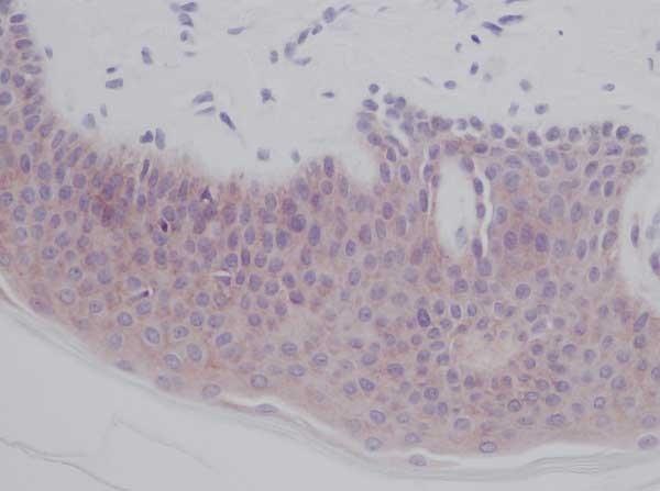 Anti Human Interleukin-1 Alpha Antibody thumbnail image 1