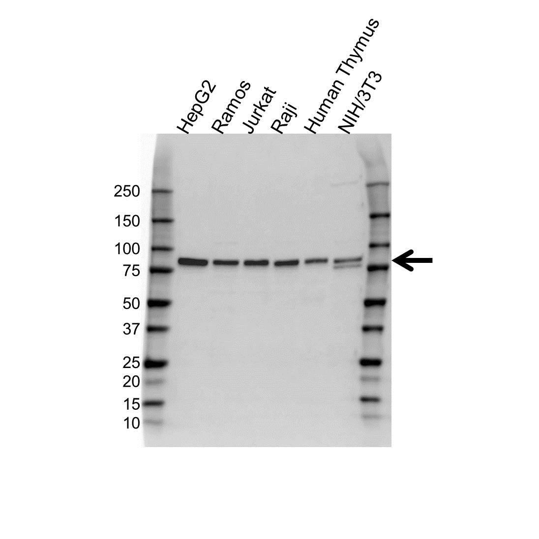 Anti IL-12 Receptor B2 Antibody (PrecisionAb Polyclonal Antibody) gallery image 1