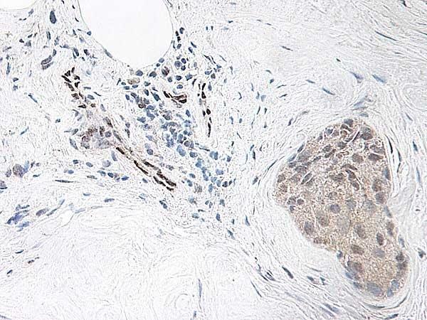 Anti Human Interleukin-33 Antibody thumbnail image 2