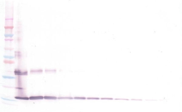 Anti Human INTERLEUKIN-36 Gamma Antibody gallery image 1