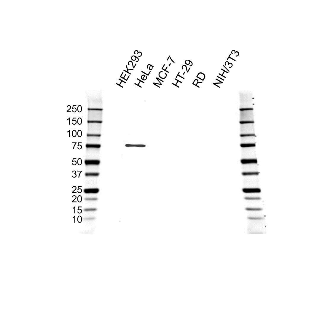 Anti IRAK1 Antibody (PrecisionAb Polyclonal Antibody) gallery image 1