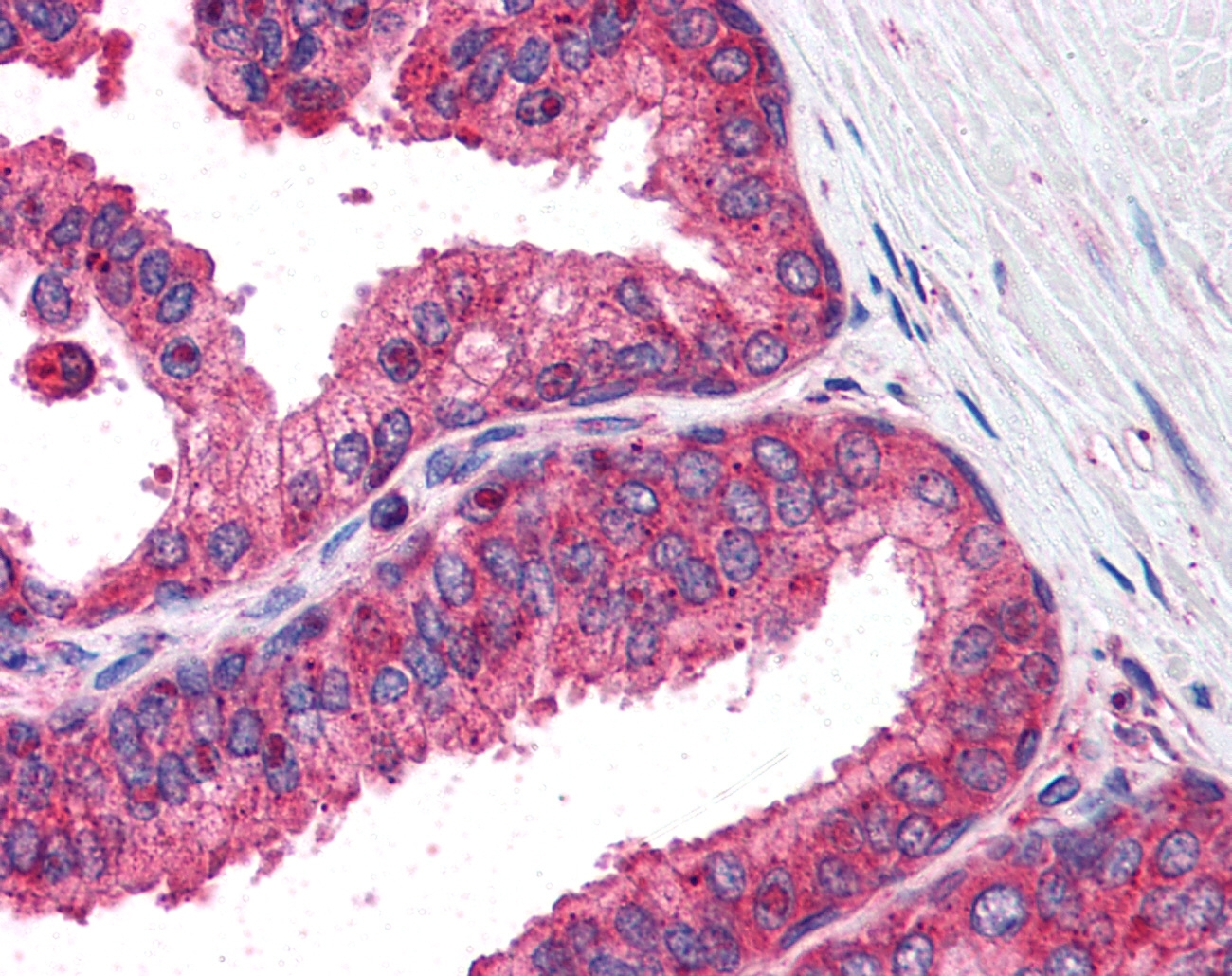 Anti Human IRF3 Antibody gallery image 1