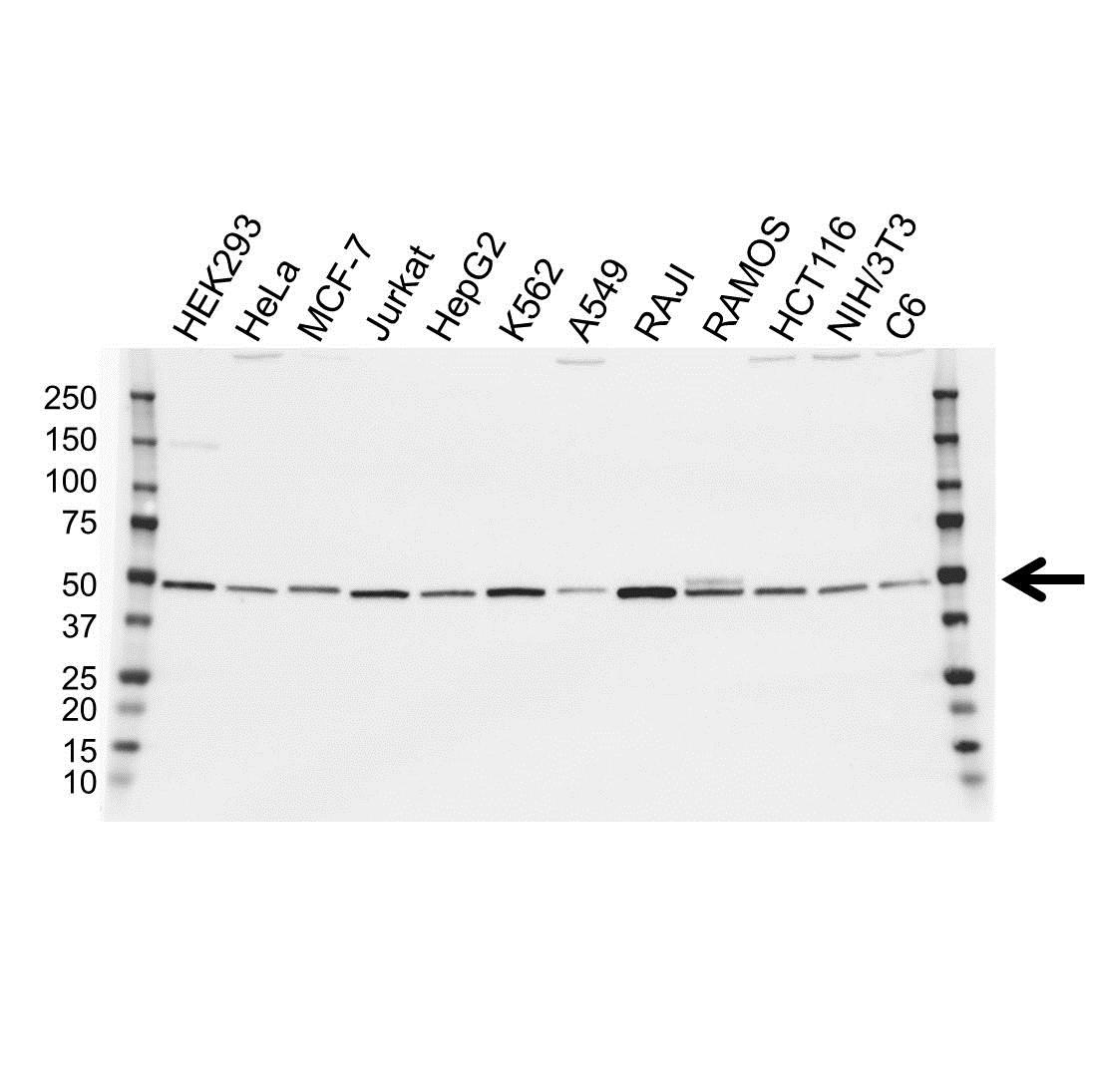 Anti IRF4 Antibody (PrecisionAb™ Polyclonal Antibody) gallery image 1