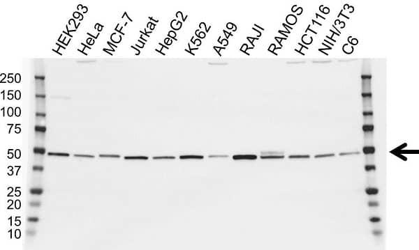 Anti IRF4 Antibody (PrecisionAb Polyclonal Antibody) gallery image 1