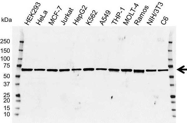 Anti IRF5 Antibody (PrecisionAb Polyclonal Antibody) gallery image 1