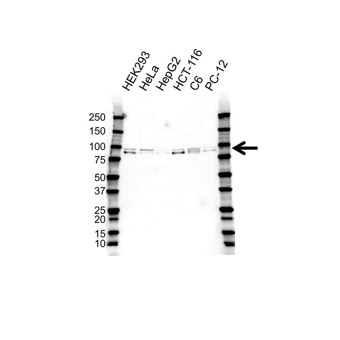 Anti IRP1 Antibody (PrecisionAb Polyclonal Antibody) gallery image 1