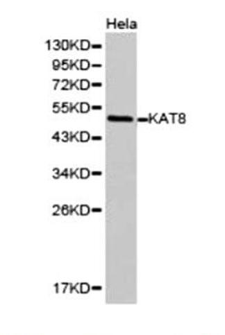 Anti KAT8 Antibody gallery image 1