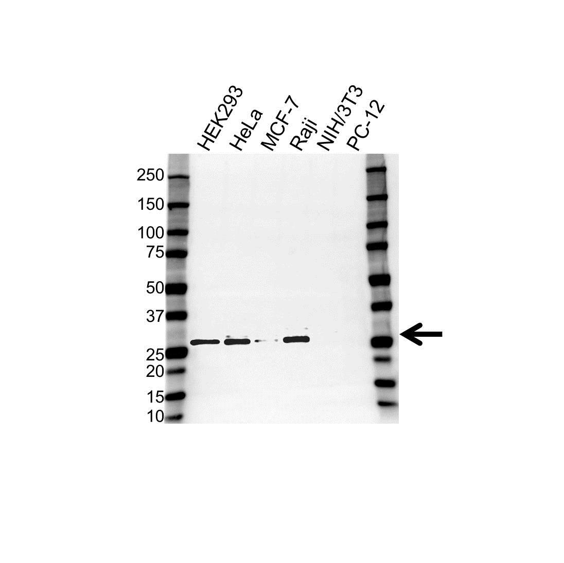 Anti KDELR1 Antibody (PrecisionAb Polyclonal Antibody) gallery image 1