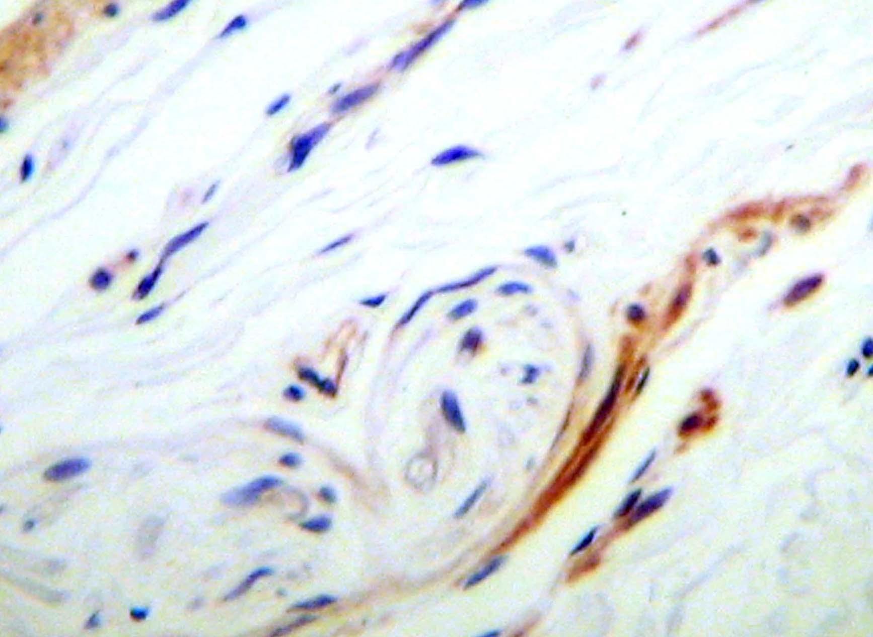 Anti Human KGF Antibody thumbnail image 1