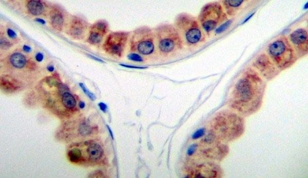 Anti Human KGF Antibody thumbnail image 2