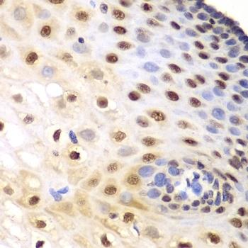 Anti KPNA1 Antibody thumbnail image 3