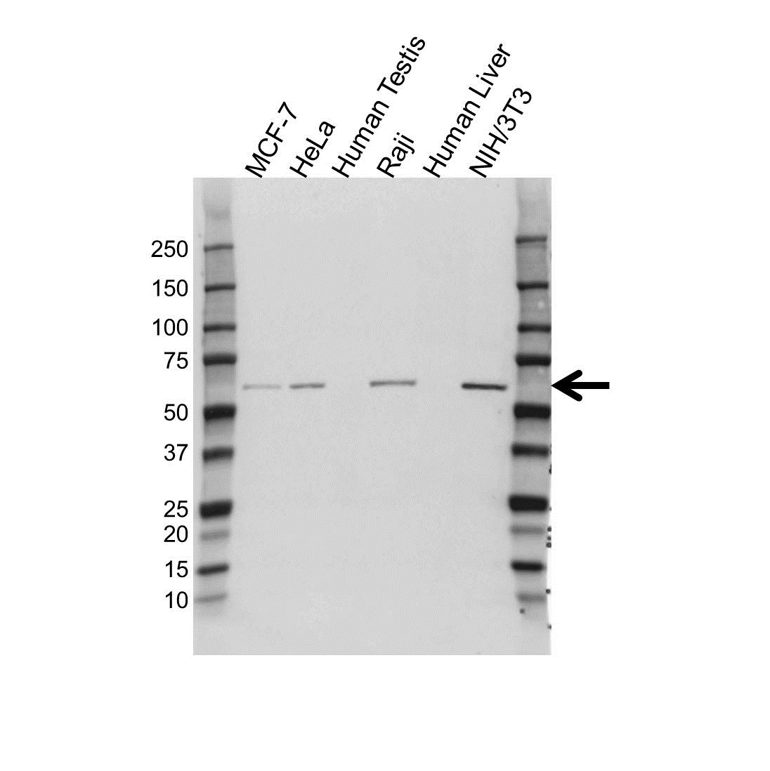 Anti KPNA4 Antibody (PrecisionAb™ Polyclonal Antibody) gallery image 1