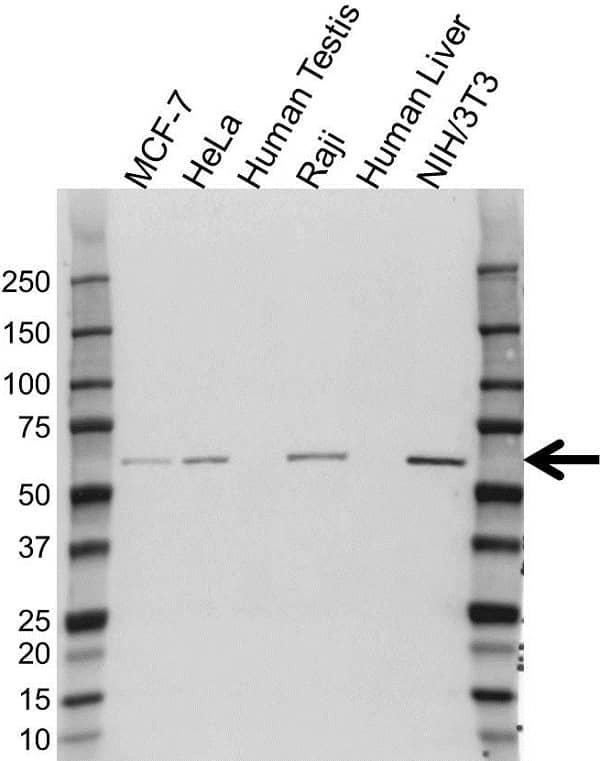 Anti KPNA4 Antibody (PrecisionAb Polyclonal Antibody) gallery image 1