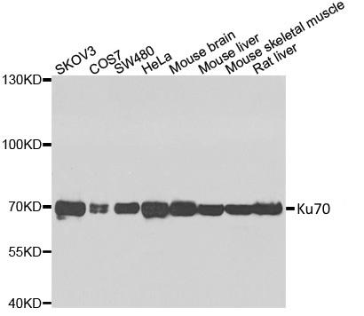 Anti Ku70 Antibody thumbnail image 2