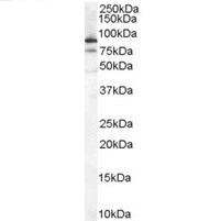 Anti Human Ku80 Antibody gallery image 1