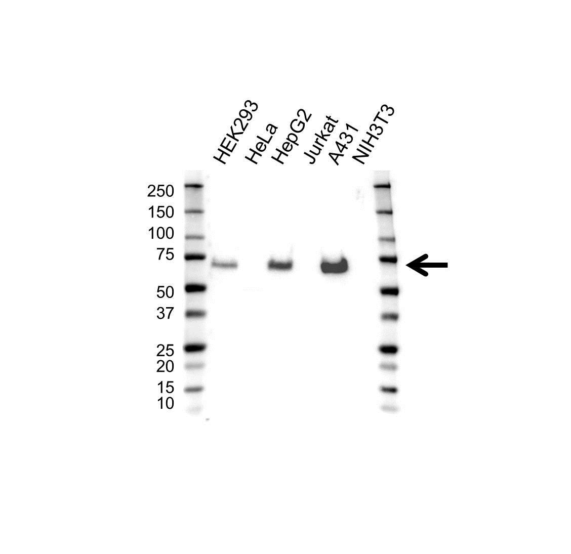 Anti Lamin B Receptor Antibody (PrecisionAb™ Polyclonal Antibody) gallery image 1