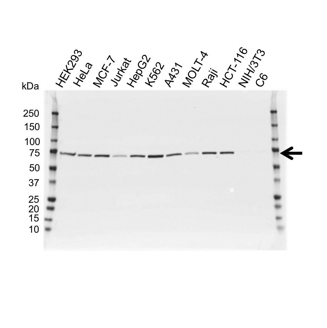 Anti Lamin B1 Antibody (PrecisionAb™ Polyclonal Antibody) gallery image 1